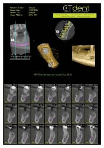 CTDent-DP700-samples Page 09-600x849